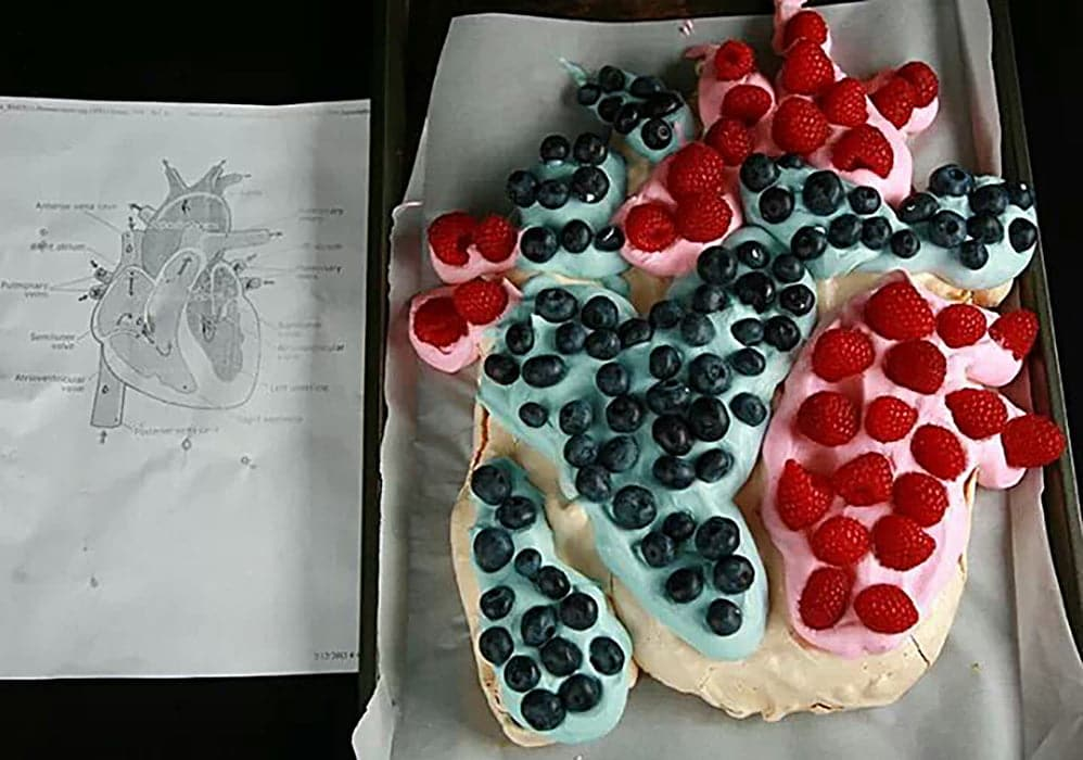 A more anatomically correct Heart Shaped Pavlova. It's blue and red, with appropriately coloured whipped creams and raspberries and blueberries. Next to the pavlova is a diagram of a human heart, for reference.